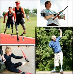 Cameron utilizes a variety of custom-designed prosthetic devices, enabling him to enjoy an active, productive life. This includes participating in a wide variety of activities and athletic events. Photos courtesy of Hanger Pros�thetics & Orthotics Inc., www.hanger.com