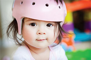 infant in cranial helmet