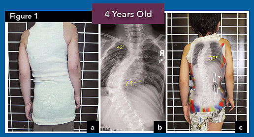 case study for scoliosis